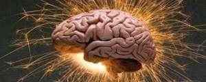cerebro-300x120