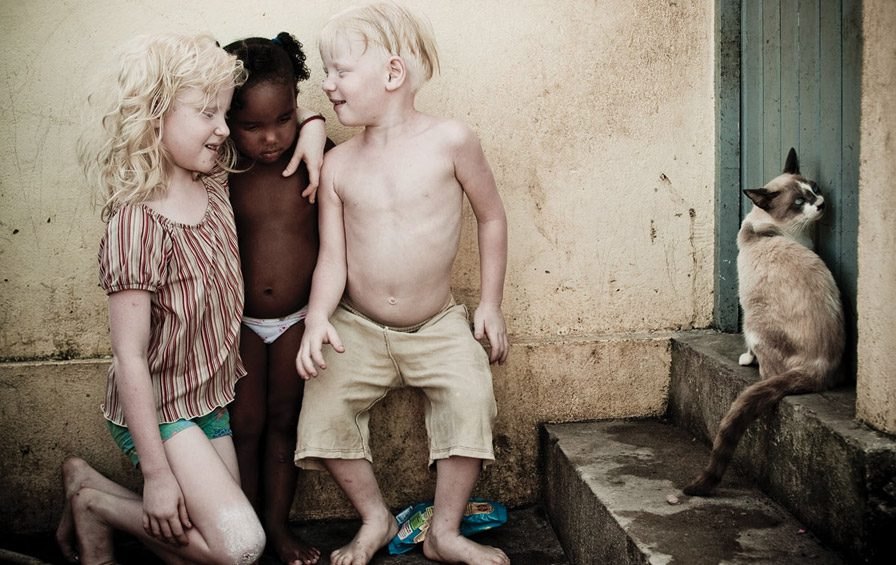 albino g