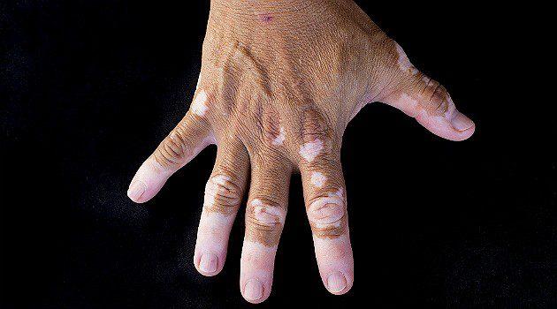 vitiligo-remedio