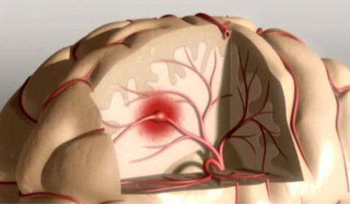 derrame-cerebral-500x292