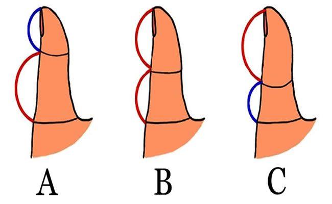 é isto que o comprimento de seu polegar revela