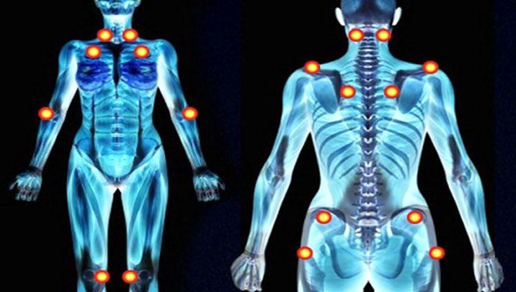 Pontos de dor fibromialgia