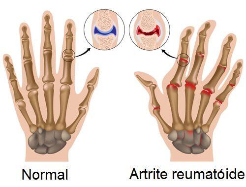 artrite2