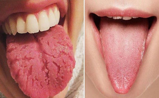 isto é o que sua língua