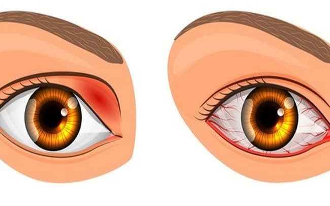 seus olhos podem te
