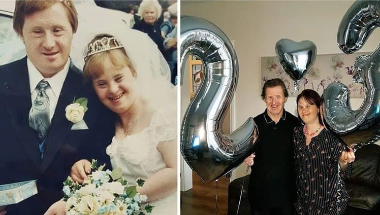 casal com síndrome de Down