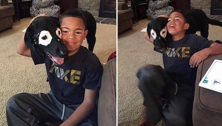 menino com vitiligo recupera