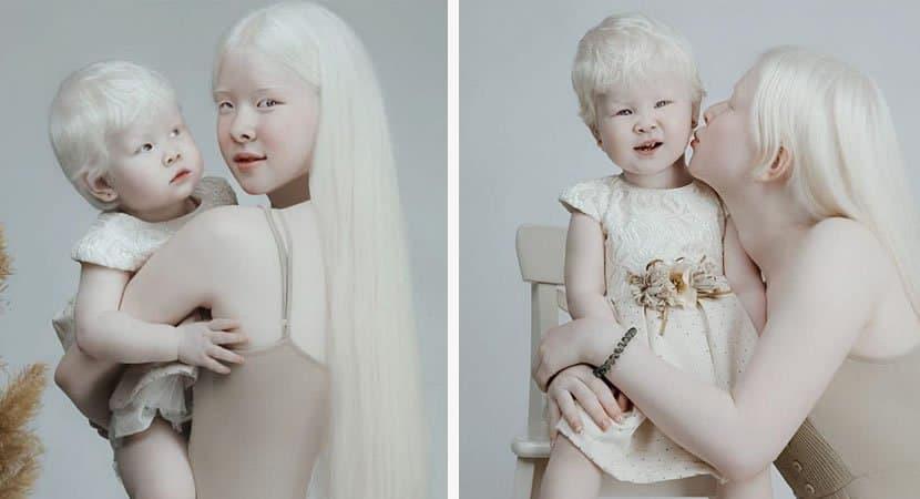 viralirmãs albinas