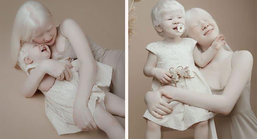 viralirmãs albinas2