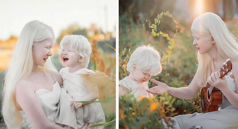 viralirmãs albinas3