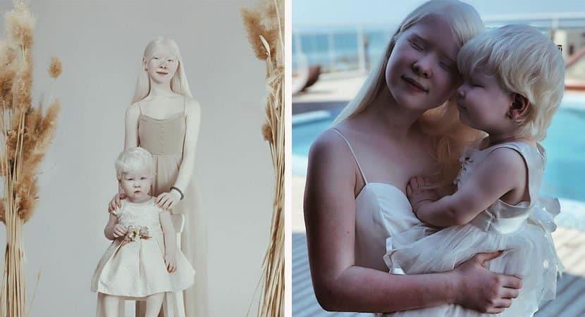 viralirmãs albinas4