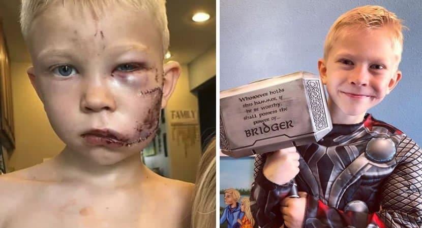 capamenino heroi que foi ferido no rosto ao salvar irma de ataque de cao tem recuperacao surpreedente
