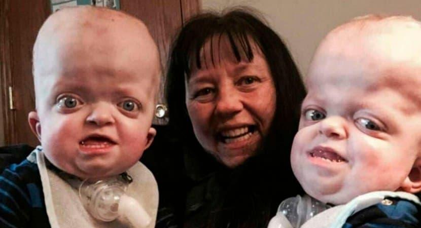 Capa Enfermeira adota bebes gemeos com rara deformidade genetica abandonados Eu simplesmente me