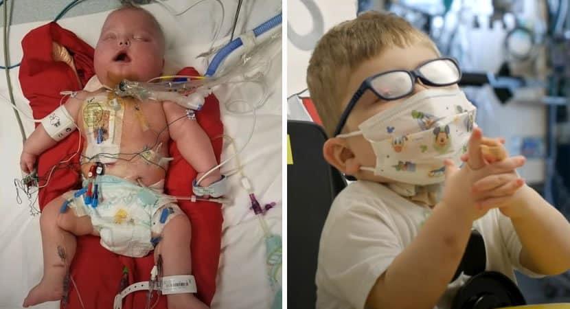 1 capa Bebe milagroso que nunca havia saido do hospital finalmente recebe alta e pode ir para casa