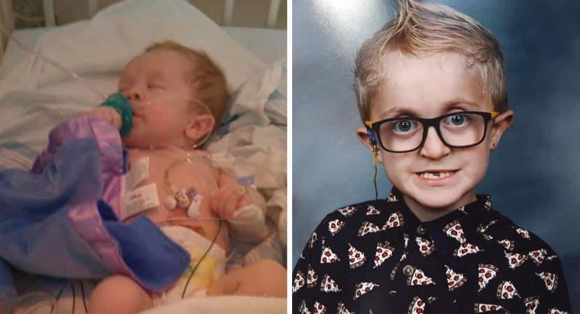 3 capa Menino com sindrome rara contraria expectativa dos medicos e sobrevive Nao sou forte apenas corajoso