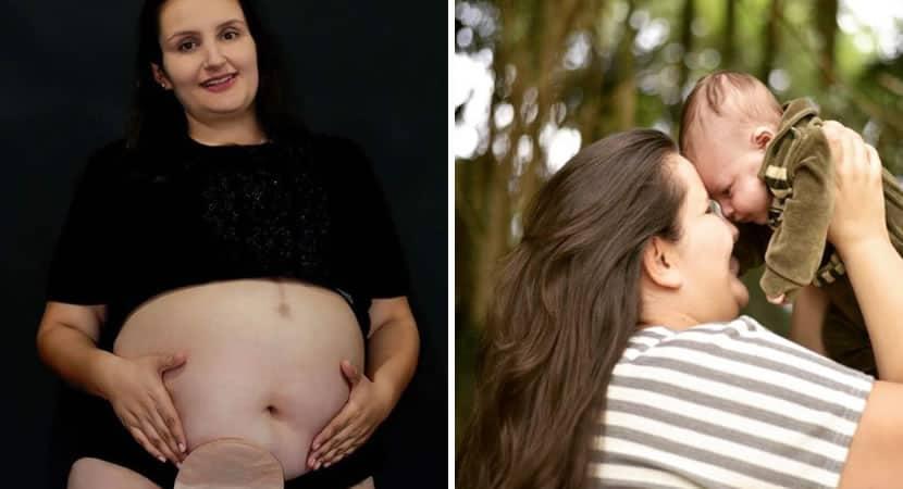 3 capa Como uma pessoa gorda como voce pode engravidar mae relata violencias medicas que sofreu