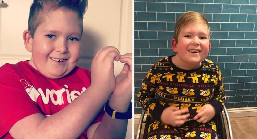 capasorriso da vitoria menino que nasceu com 2 do cerebro vence probabilidades e completa 11 anos