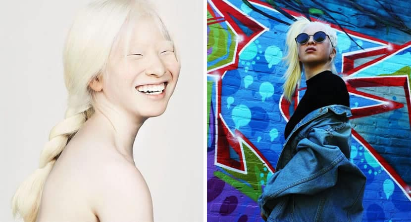1 capa Imperfeicoes perfeitas Abandonada ainda bebe por ser albina adolescente se torna modelo da Vogue