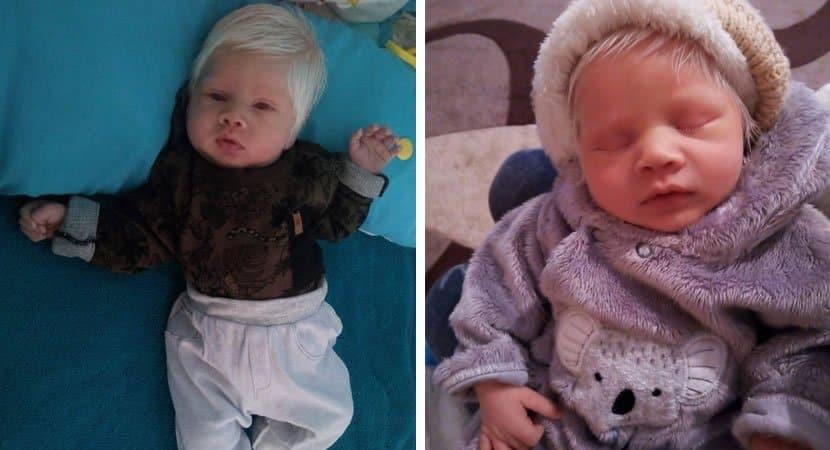 3bebe gaucho faz sucesso ao nascer com cabelos completamente brancos