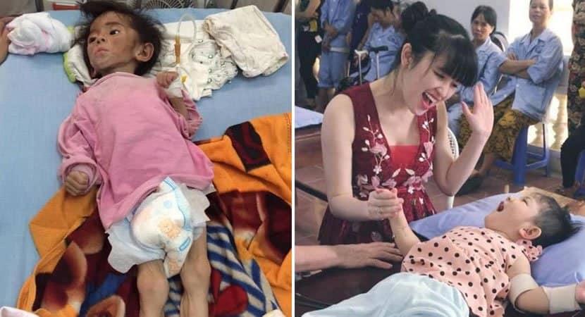 5 capa Bebe abandonada gravemente desnutrida e com paralisia cerebral e adotada por jovem Salvou sua vida