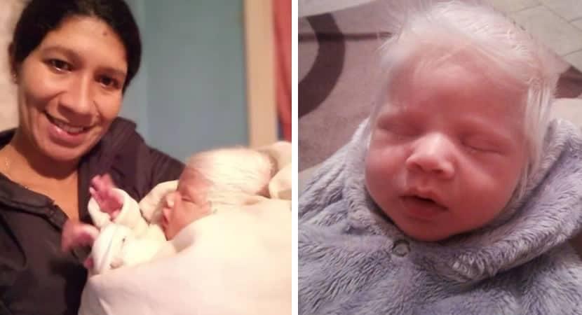 capabebe gaucho faz sucesso ao nascer com cabelos completamente brancos