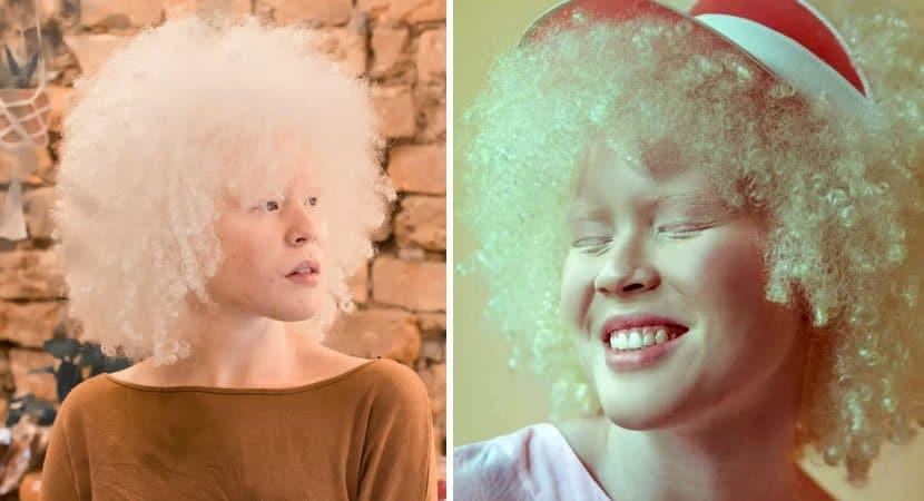 capafilha de domestica jovem negra com albinismo e aprovada em 1o lugar em Psicologia na USP
