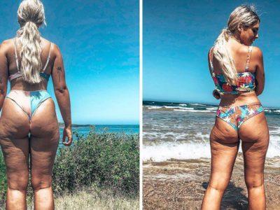 3 capa Mulher publica fotos mostrando celulites e gorduras Acredita que todos os corpos sao lindos