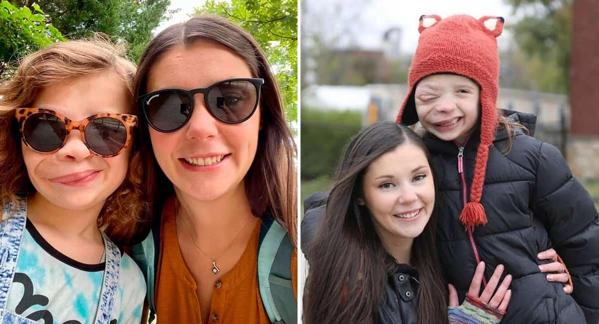 5 capa site Diagnosticada com raro tumor no rosto menina de 11 anos se aceita como e diz mae