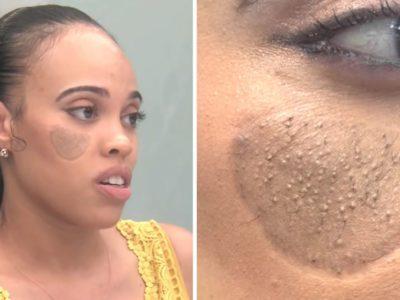 capamulher fez enxerto de pele percebeu pelos pubicos crescendo em seu rosto e teve descoberta chocante